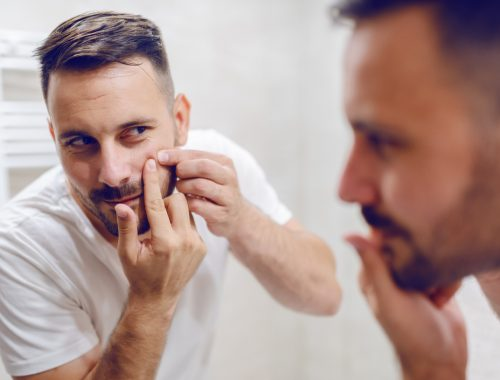 Acne men what causes acne how to get rid treatment neck