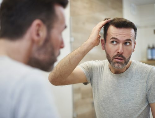 Hair loss men how to prevent hair loss and what is male pattern baldness