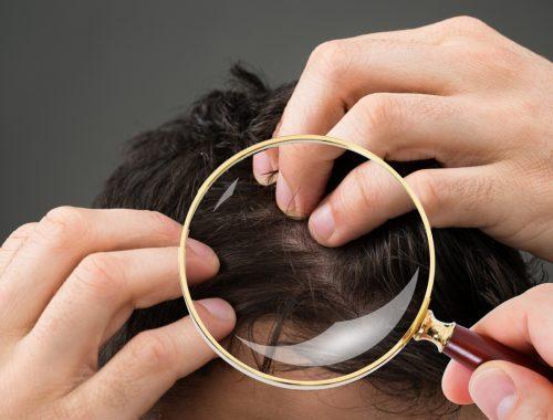 Prevent hair loss men