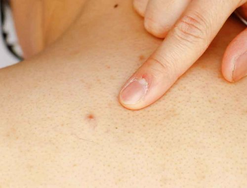 Back-acne-treatment-and-causes-in-men