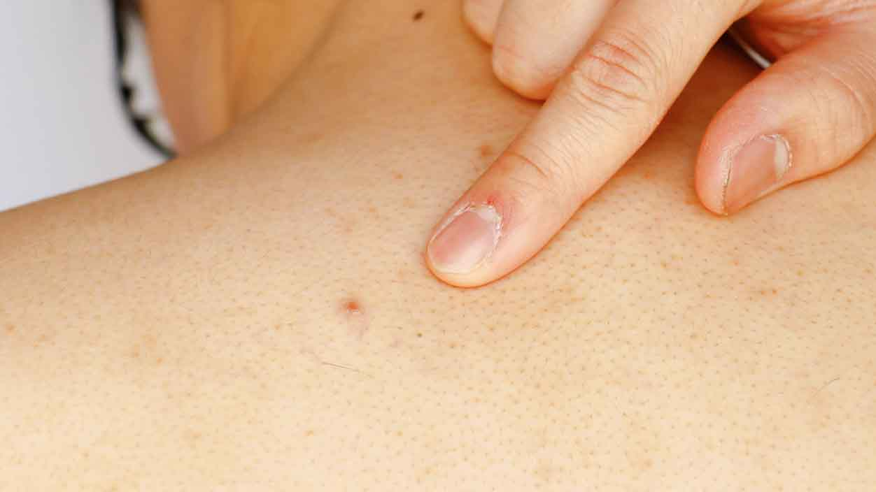Back acne: How to get rid of back acne with treatment products that actually work