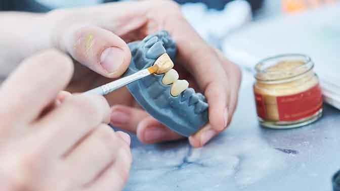 How do teeth veneers work