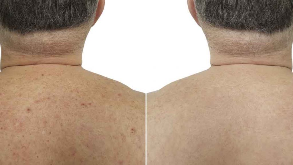 How-to-get-rid-of-back-acne-in-men