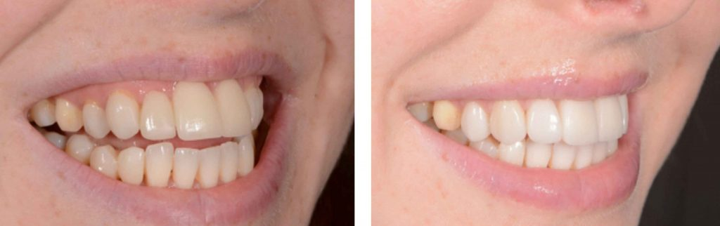 Veneers Before and After UK