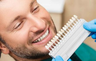 Veneers-what-are-teeth-veneers-how-do-they-work-and-how-much-do-they-cost